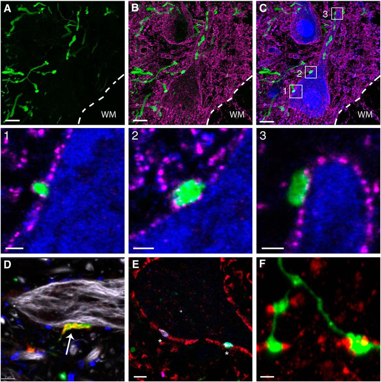 3D Imaging Of Axons In Transparent Spinal Cords From