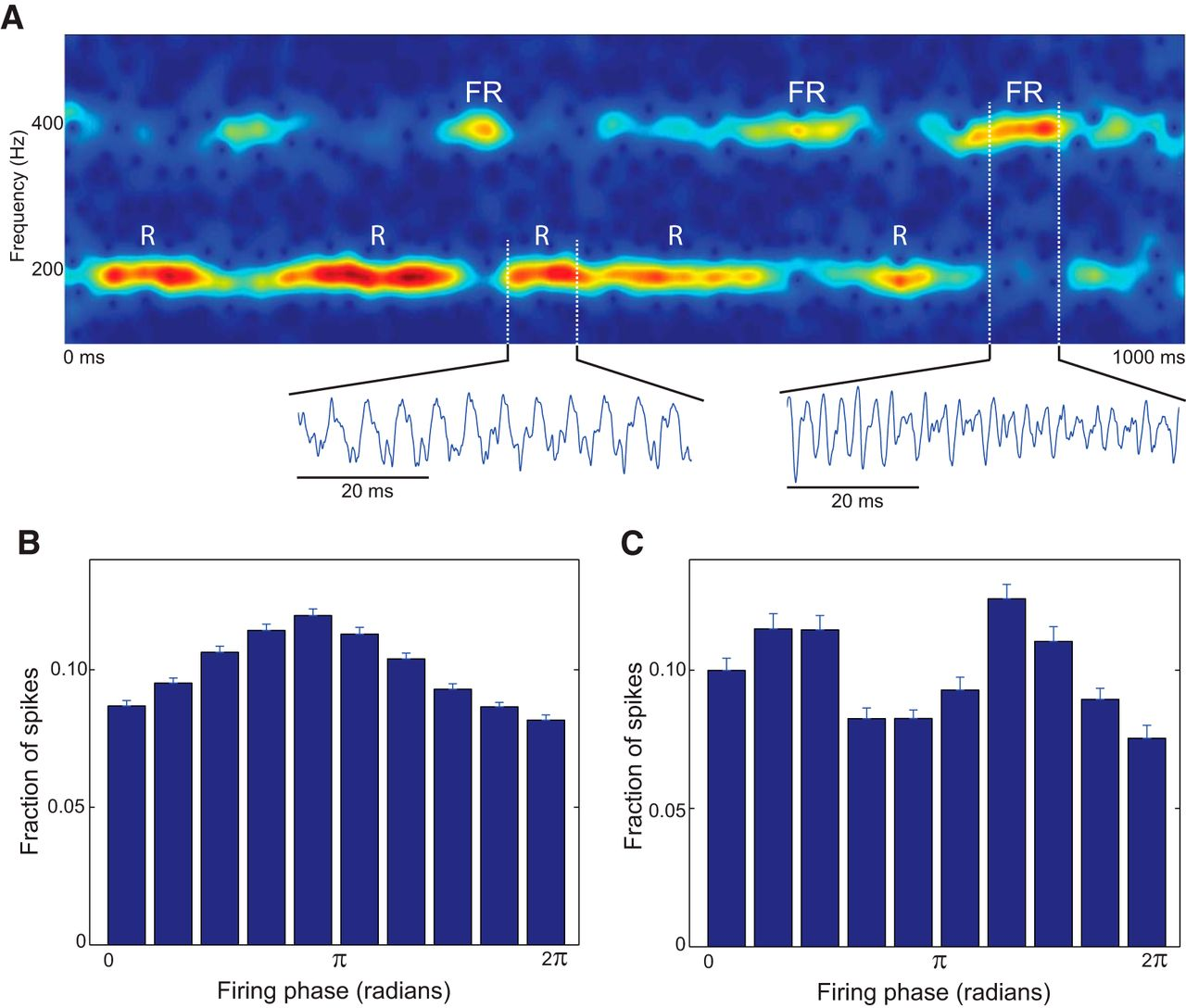 Network Mechanisms Generating Abnormal and Normal