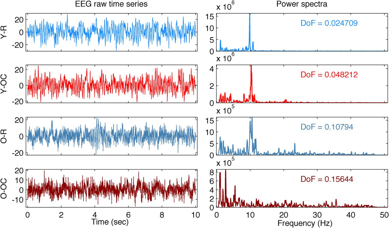Brain Dynamics of Aging: Multiscale Variability of EEG Signals at