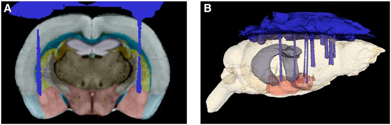 Localization of Metal Electrodes in the Intact Rat Brain Using ...