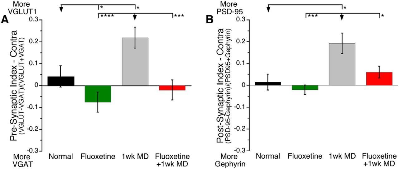 oxybutynin ditropan 15 mg