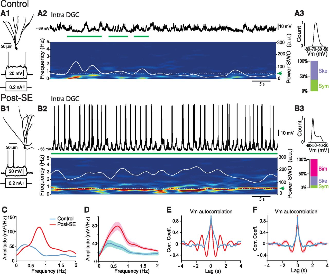 Abnormal updown membrane potential dynamics coupled with the download figure ccuart Images