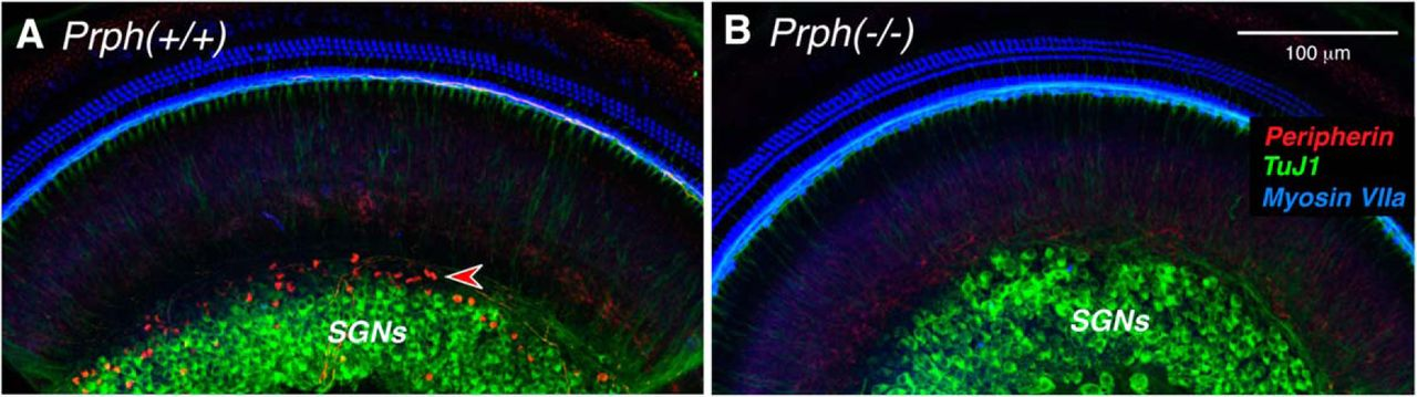 Type II Cochlear Ganglion Neurons Do Not Drive the