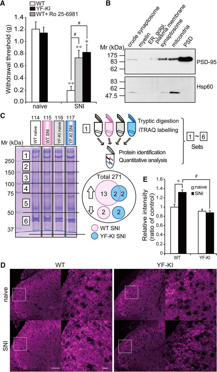 Involvement Of Brain Enriched Guanylate Kinase Associated Protein