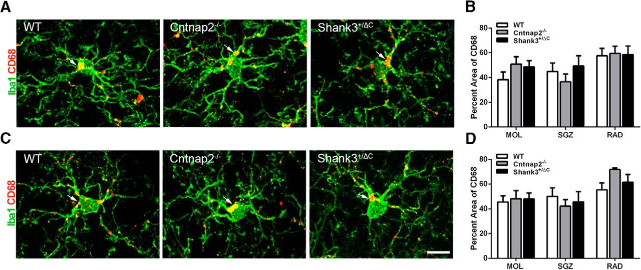 Immature Neurons And Radial Glia But Not Astrocytes Or