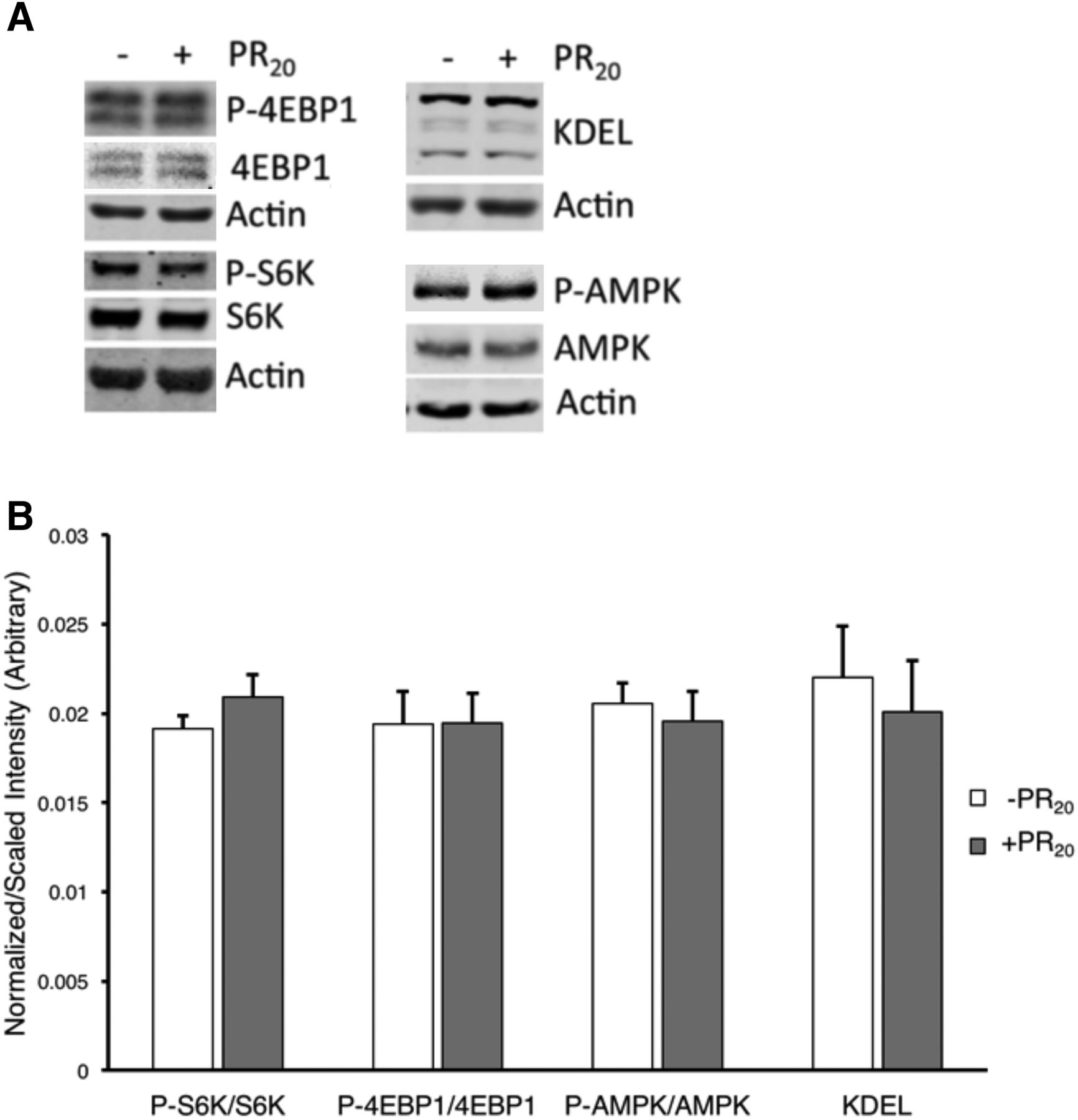 The Proline/Arginine Dipeptide from Hexanucleotide Repeat Expanded
