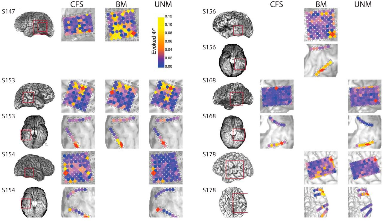 Conscious Perception as Integrated Information Patterns in
