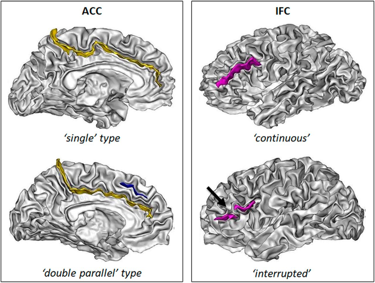 Sulcal Polymorphisms Of The Ifc And Acc Contribute To Inhibitory
