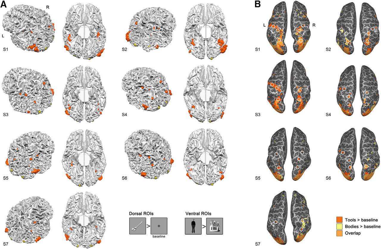 Ventral and Dorsal Pathways Relate Differently to Visual Awareness ...