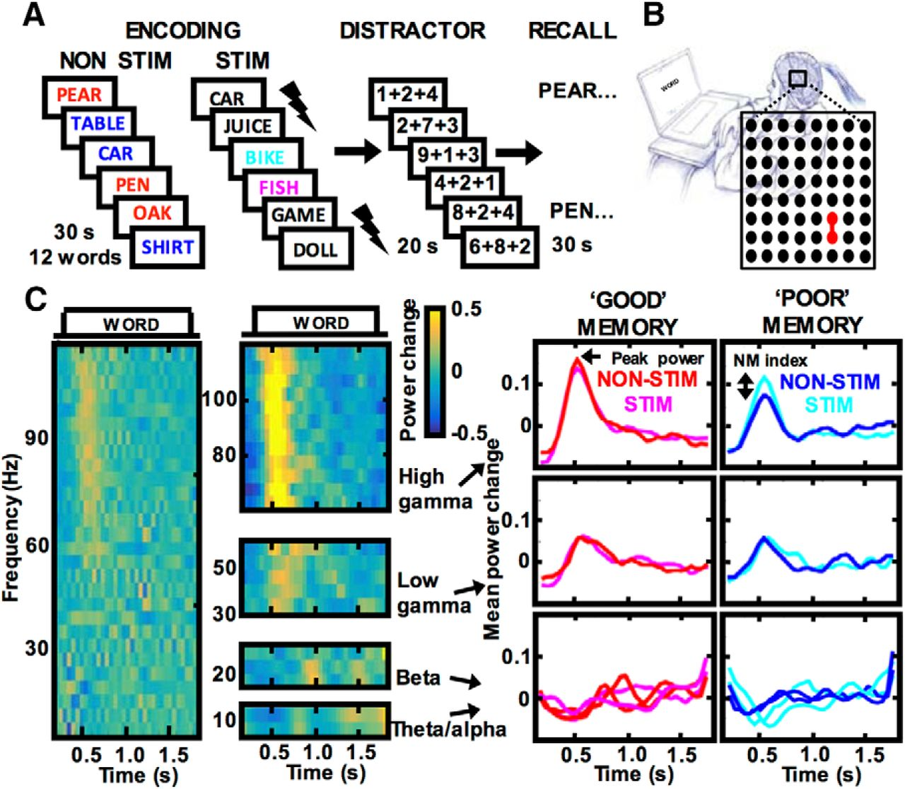 electrical stimulation modulates high γ activity and human memory
