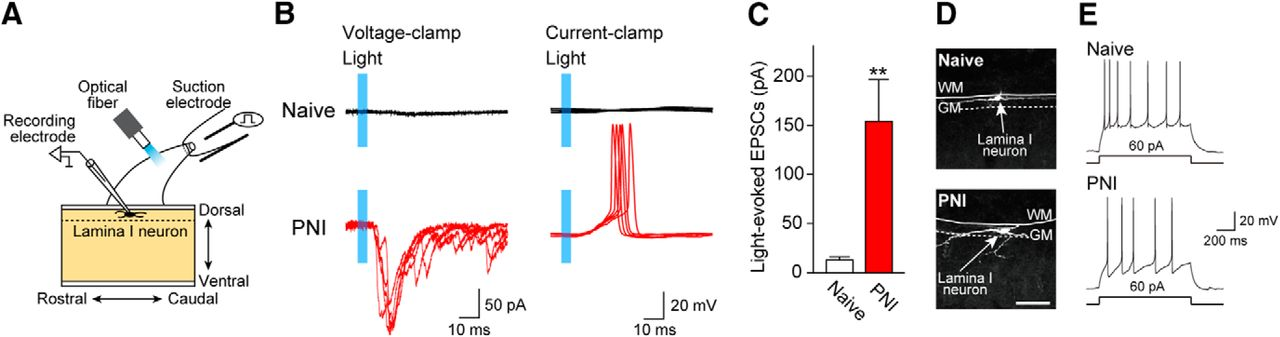 Optogenetic Activation of Non-Nociceptive Aβ Fibers Induces