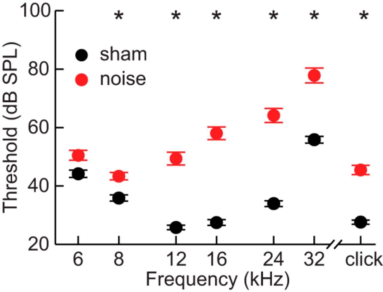 Central Compensation in Auditory Brainstem after Damaging