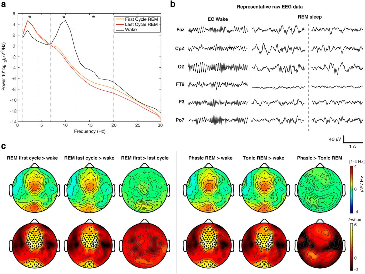 Human Rapid Eye Movement Sleep Shows Local Increases in Low
