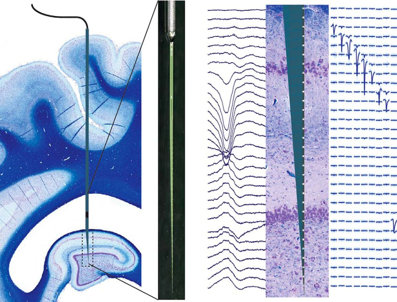 Electrophysiological Signature Reveals Laminar Structure of the