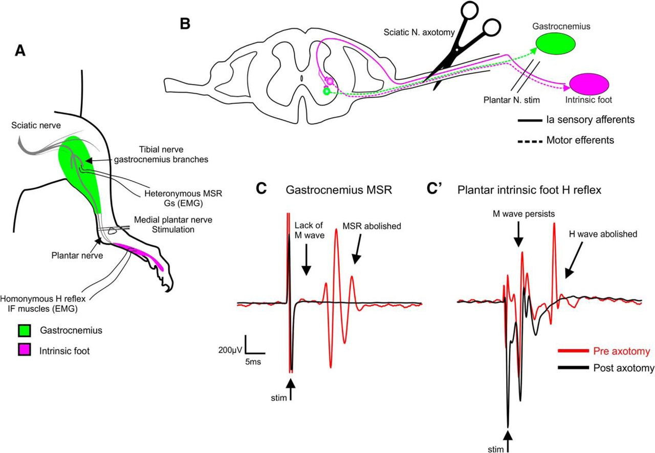 Simultaneous Assessment Of Homonymous And Heteronymous Monosynaptic Cat Skeleton Moreover Knee Muscles Tendons Diagram In Addition Download Figure