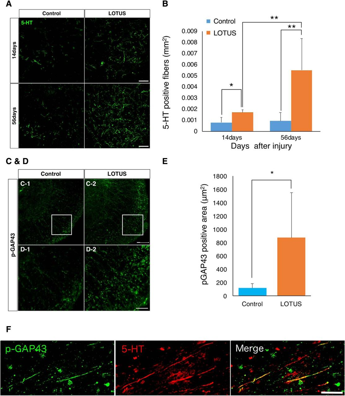 LOTUS Inhibits Neuronal Apoptosis and Promotes Tract