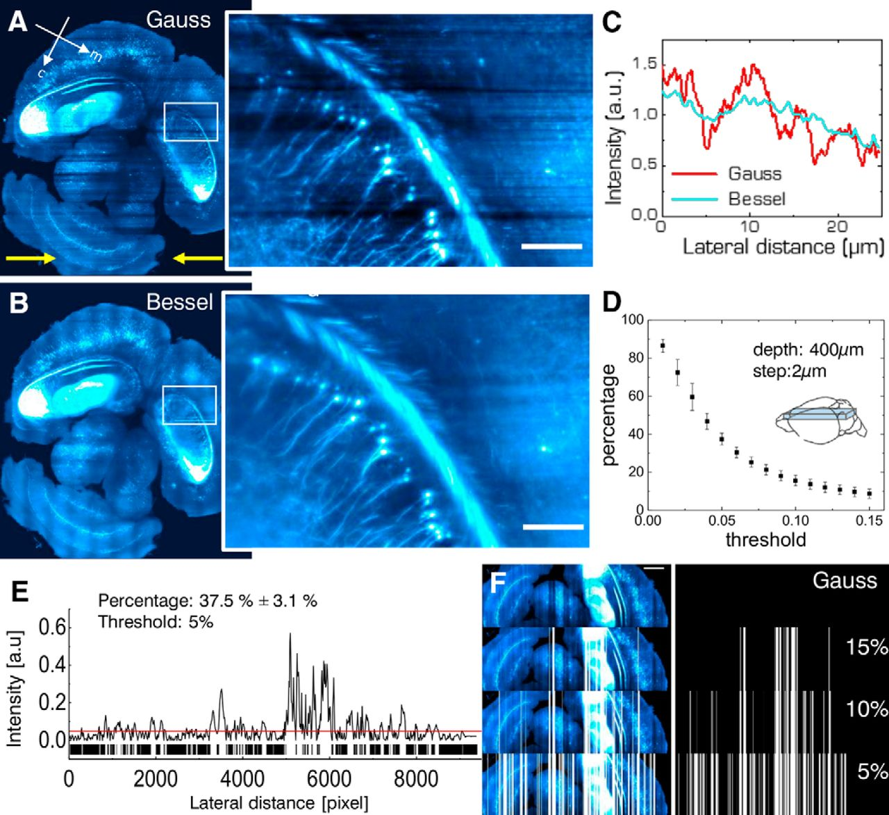 High Fidelity Imaging In Brain Wide Structural Studies Using Light Audio How To Make Led Bar Graphs Measure Intensity Electrical Download Figure