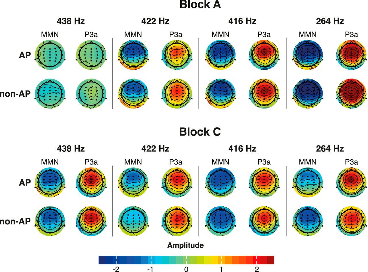Electrophysiological Correlates of Absolute Pitch in a Passive