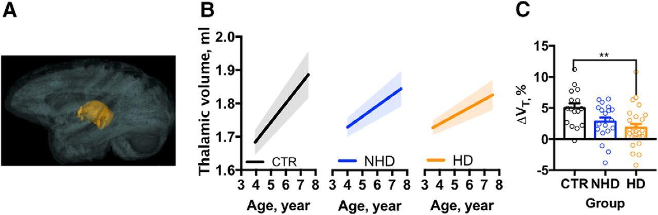 Chronic Alcohol Drinking Slows Brain Development in