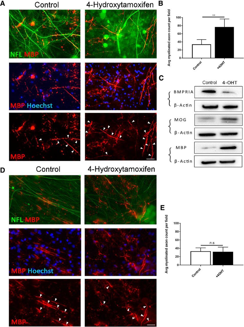 Inhibiting Bone Morphogenetic Protein 4 Type I Receptor