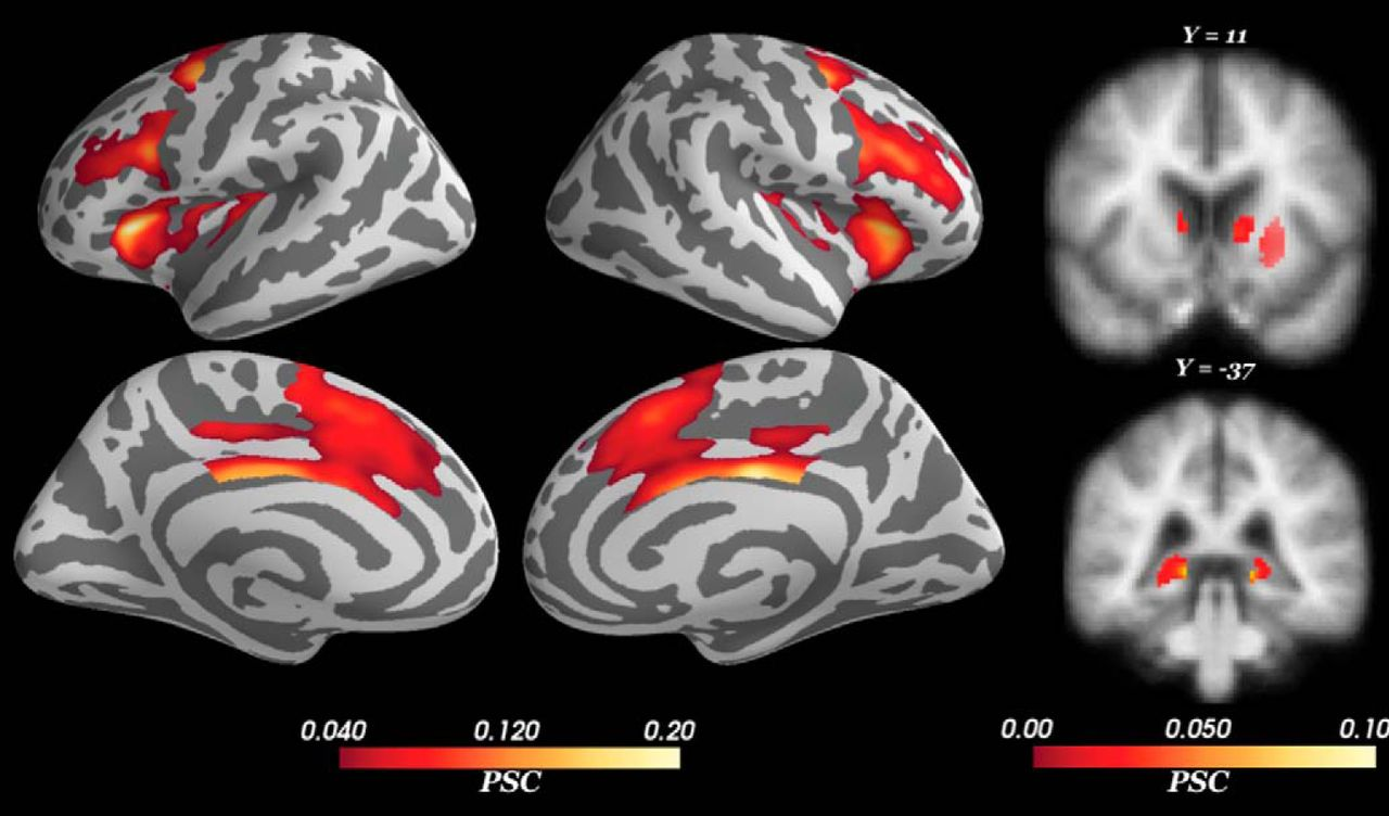 The Neural Basis of Approach-Avoidance Conflict: A Model