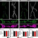 The BLOC-1 Subunit Pallidin Facilitates Activity-Dependent Synaptic Vesicle Recycling