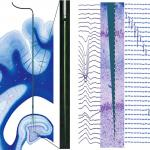 Electrophysiological Signature Reveals Laminar Structure of the Porcine Hippocampus
