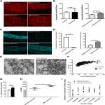 Inhibiting Bone Morphogenetic Protein 4 Type I Receptor Signaling Promotes Remyelination by Potentiating Oligodendrocyte Differentiation