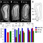 Differential Effects of Nasal Inflammation and Odor Deprivation on Layer-Specific Degeneration of the Mouse Olfactory Bulb