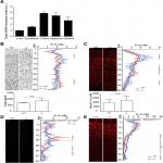 Loss of Tiparp Results in Aberrant Layering of the Cerebral Cortex