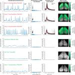 Aberrant Cortical Activity in Multiple GCaMP6-Expressing Transgenic Mouse Lines