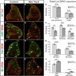 Deletion of Tsc2 in Nociceptors Reduces Target Innervation, Ion Channel Expression, and Sensitivity to Heat