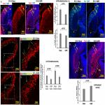 Intrauterine Growth Restriction Causes Abnormal Embryonic Dentate Gyrus Neurogenesis in Mouse Offspring That Leads to Adult Learning and Memory Deficits