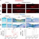 α2δ-1 Signaling Drives Cell Death, Synaptogenesis, Circuit Reorganization, and Gabapentin-Mediated Neuroprotection in a Model of Insult-Induced Cortical Malformation