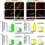 AMPA Receptor Phosphorylation and Synaptic Colocalization on Motor Neurons Drive Maladaptive Plasticity below Complete Spinal Cord Injury