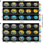 Sleep-State Dependent Alterations in Brain Functional Connectivity under Urethane Anesthesia in a Rat Model of Early-Stage Parkinson's Disease