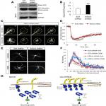 The X-Linked Autism Protein KIAA2022/KIDLIA Regulates Neurite Outgrowth via N-Cadherin and δ-Catenin Signaling