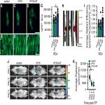Hypoxia-Inducible Factor 1α (HIF-1α) Counteracts the Acute Death of Cells Transplanted into the Injured Spinal Cord
