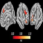 The Neural Basis of Approach-Avoidance Conflict: A Model Based Analysis