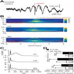 Large-Scale 3–5 Hz Oscillation Constrains the Expression of Neocortical Fast Ripples in a Mouse Model of Mesial Temporal Lobe Epilepsy