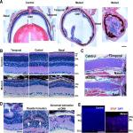 Loss of <em>Ikbkap</em> Causes Slow, Progressive Retinal Degeneration in a Mouse Model of Familial Dysautonomia