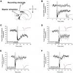 Presynaptic NR2A-Containing NMDARs Are Required for LTD between the Amygdala and the Perirhinal Cortex: A Potential Mechanism for the Emotional Modulation of Memory?