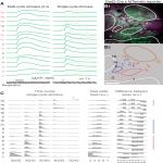 Narrowly Confined and Glomerulus-Specific Onset Latencies of Odor-Evoked Calcium Transients in the Juxtaglomerular Cells of the Mouse Main Olfactory Bulb