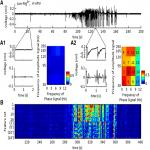 Phase Coherent Currents Underlying Neocortical Seizure-Like State Transitions