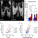 Metabolic Disturbances of a High-Fat Diet Are Dependent on APOE Genotype and Sex