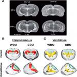 Western High-Fat Diet Consumption during Adolescence Increases Susceptibility to Traumatic Stress while Selectively Disrupting Hippocampal and Ventricular Volumes