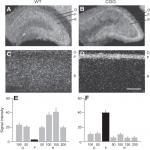 BC RNA Mislocalization in the Fragile X Premutation