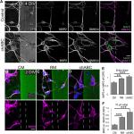 Reelin Counteracts Chondroitin Sulfate Proteoglycan-Mediated Cortical Dendrite Growth Inhibition