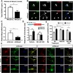 Vitamin D Supplementation Rescues Aberrant NF-κB Pathway Activation and Partially Ameliorates Rett Syndrome Phenotypes in <em>Mecp2</em> Mutant Mice