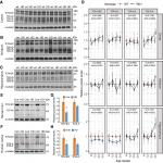 Isoform-Specific Reduction of the Basic Helix-Loop-Helix Transcription Factor TCF4 Levels in Huntington's Disease
